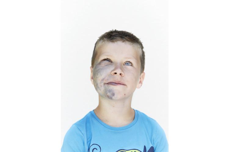Der 8-jährige Gian lebt mit einer durch Genmutation verursachten Hautauffälligkeit, die als glomuvenöse Malformation bezeichnet wird.
