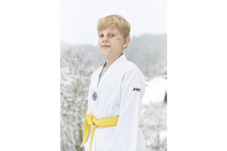 Till, 10, hatte einen Nävus auf der linken Gesichtshälfte, den die Eltern entfernen liessen, als er 1 war.