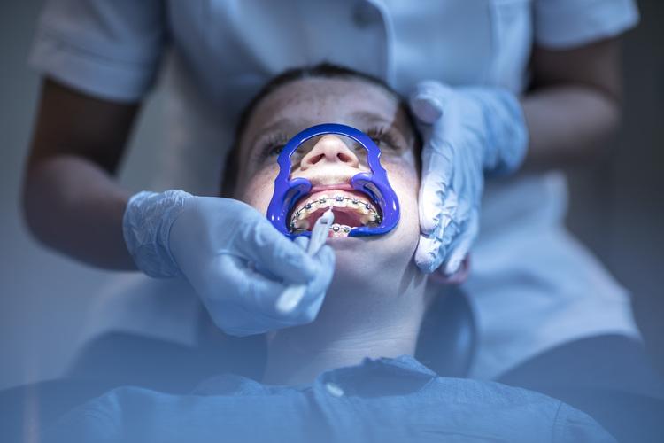 Viele entscheiden sich aus ästhetischen Gründen für eine Zahnspange. Manchmal ist sie aber unerlässlich. Bild: Deepol / Plainpicture